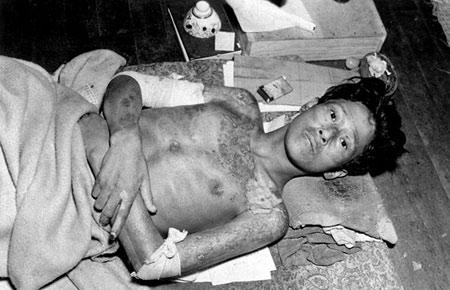 Opfer der Atombombe auf Nagasaki