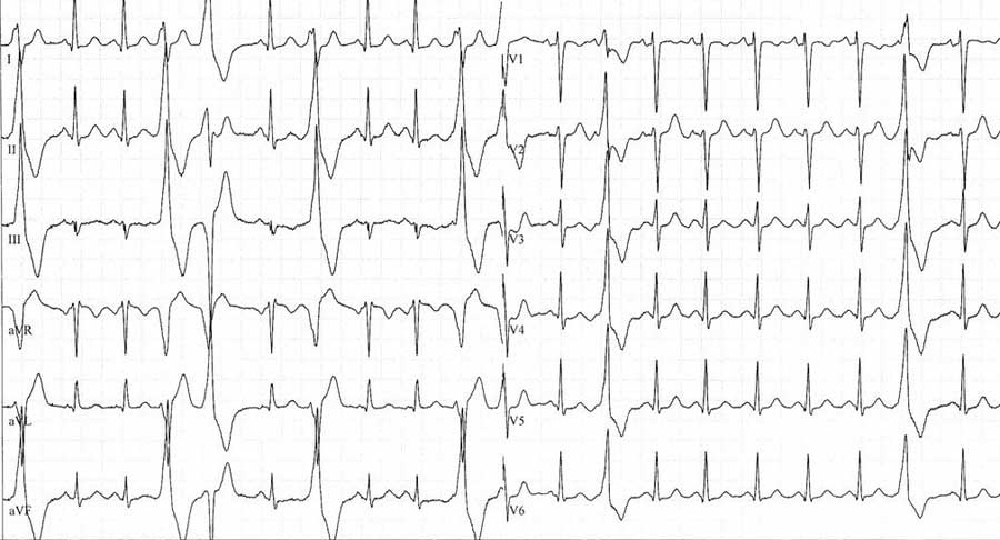EKG - Symbolbild